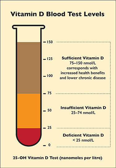 A testube graph showing the Vitamin D Blood Test Levels: Sufficient Vitamin D Levels = 75 to 150 nanomoles per litre; Insufficient Vitamin D Levels = 26 to 74 nmol/L, and Deficient Vitamin D Levels = less than 25 nmol/L. Higher vitamin D levels may reduce the severity of COVID-19.